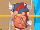 Kalp Ameliyatı 2